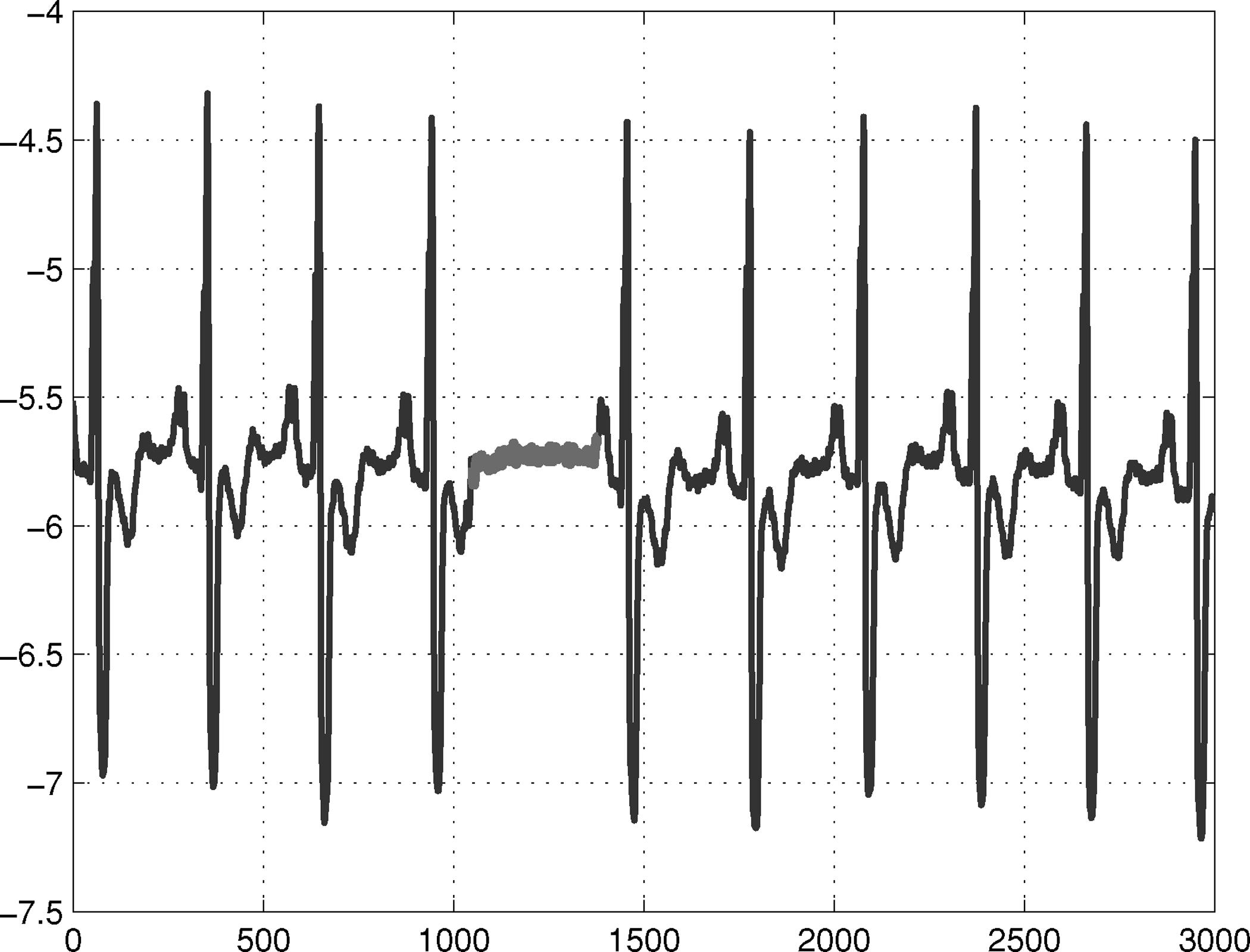 Kollektive Anomalie des Elektrokardiogramms